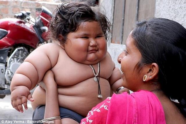 Hơn một tuổi nặng 25kg, bé gái sumo nhí Ấn Độ không thể tự đi vì béo phì - 4