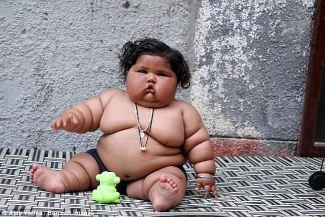 Hơn một tuổi nặng 25kg, bé gái sumo nhí Ấn Độ không thể tự đi vì béo phì - 5