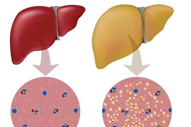 Dấu hiệu của bệnh gan nhiễm mỡ - 1