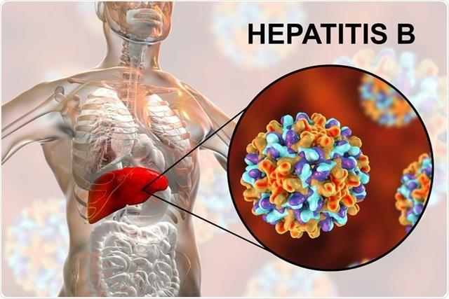 Loại virus có khả năng lây nhiễm mạnh gấp 100 lần HIV - 1