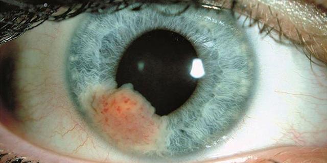 Các yếu tố nguy cơ gây ung thư mắt - 1