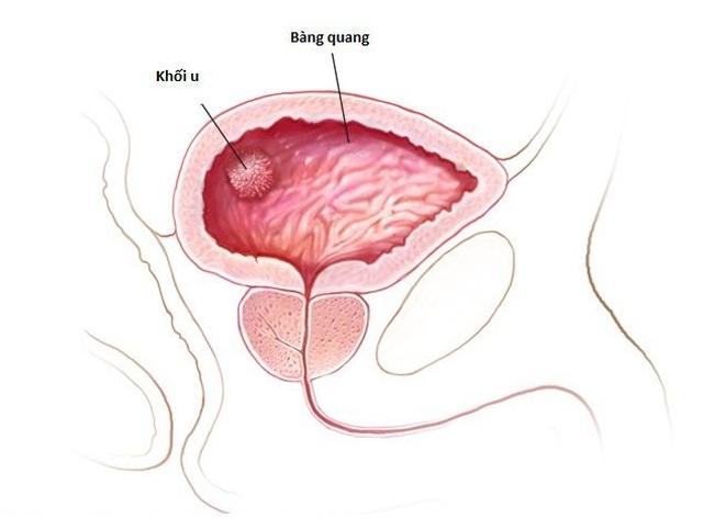 Bạn cần biết điều này để ngừa ung thư bàng quang - 1