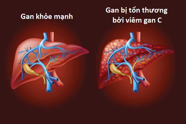 Những thói quen xấu khiến viêm gan nhanh chóng tiến triển thành xơ gan - 3