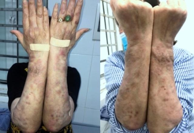 Người phụ nữ Hà Nội mắc bệnh phong bị điều trị nhầm suốt 3 năm - 3