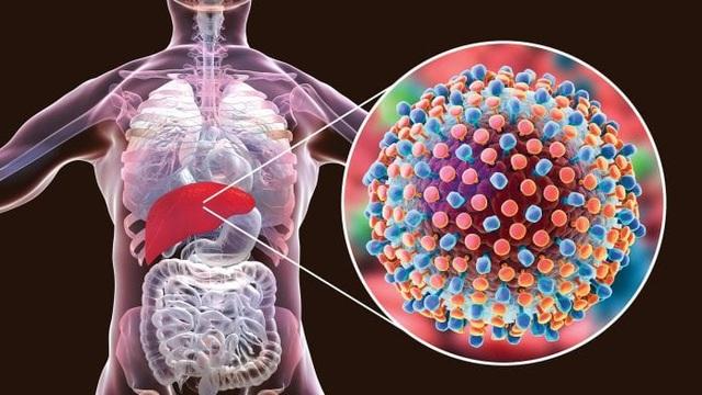 Những thói quen xấu khiến viêm gan nhanh chóng tiến triển thành xơ gan - 1