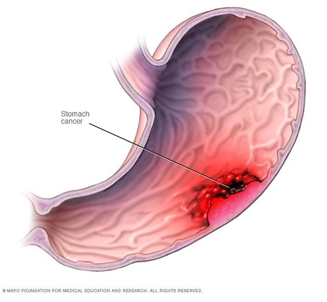 Pepsinogen-giải pháp sàng lọc ung thư dạ dày không xâm lấn - 1