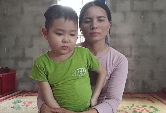 Sau đợt điều trị đầu, Tình được về nhà, do tác động phụ của thuốc nên cháu bé bị phù nề người