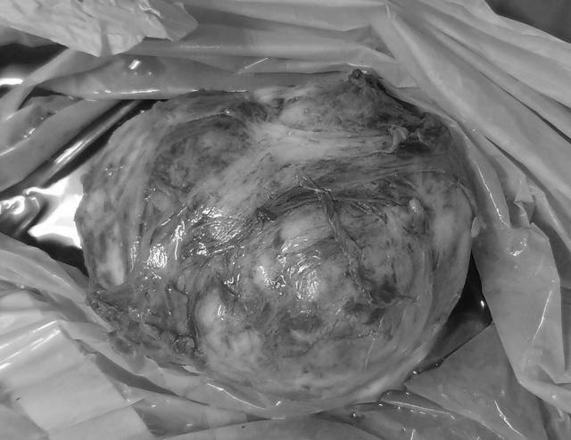 Bóc khối u xơ nặng 500g, mổ cứu thai nhi thành công - 1