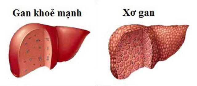4 bệnh gan nguy hiểm chỉ vì thức uống khoái khẩu của nhiều đấng mày râu - 3