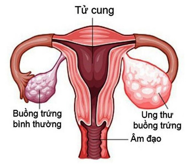 10 dấu hiệu cảnh báo căn bệnh ung thư khó phát hiện sớm ở chị em - 1