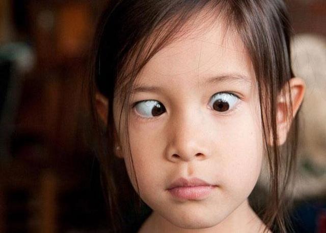 Bệnh mắt lác - Nguyên nhân, tác hại, cách chữa trị - 2