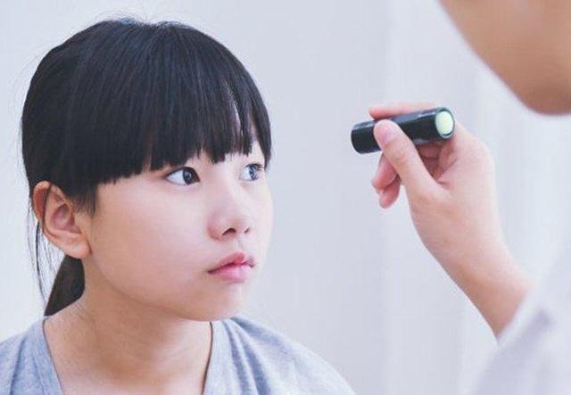 Bệnh mắt lác - Nguyên nhân, tác hại, cách chữa trị - 4
