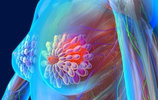 Ung thư vú: Các yếu tố nguy cơ, dấu hiệu và chẩn đoán - 1