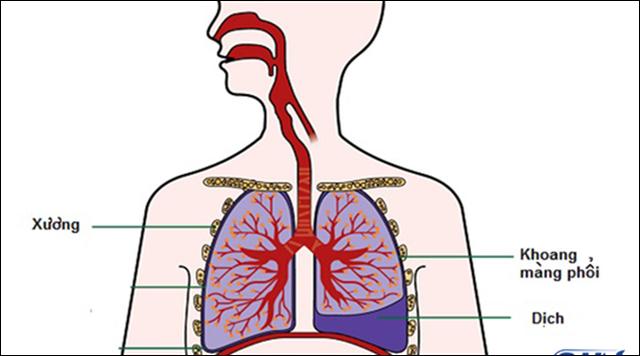 Chẩn đoán xác định ung thư phổi - 3