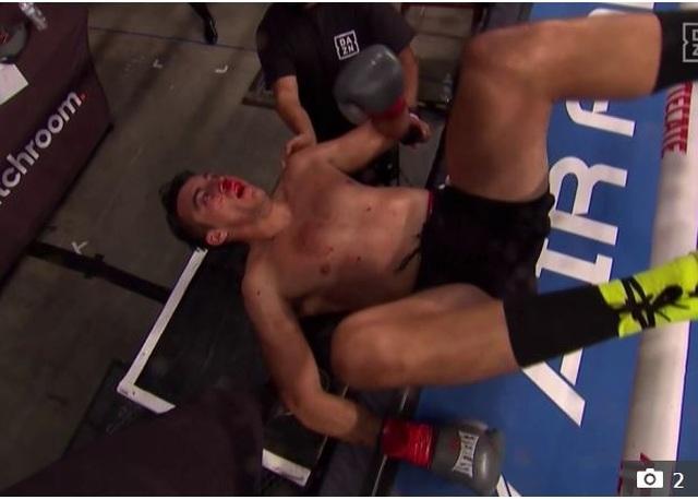 Giơ mặt thách thức đối thủ, võ sĩ nhận cái kết không thể đắng hơn - 3