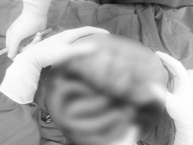 Bé trai suýt vỡ đại tràng vì gia đình chủ quan với triệu chứng táo bón - 2