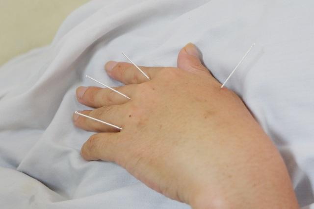 Xem bác sĩ dùng điện châm chữa liệt nửa người cho bệnh nhân đột quỵ - 5