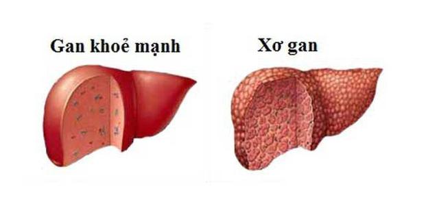 Lá gan bị xơ hóa vì bệnh tật và chất độc hại như thế nào? - 1