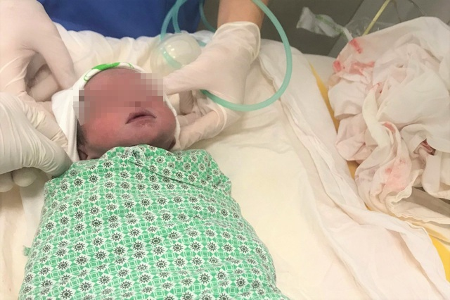 Bé trai sống sót kỳ diệu khi thai song sinh còn lại bị sảy trước đó 2 tháng - 1
