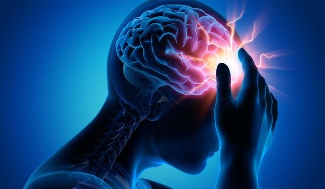 Phòng ngừa và kiểm soát đột quỵ cách nào hiệu quả? - 1