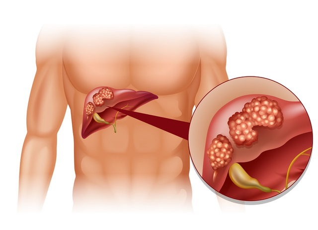 5 dấu hiệu quan trọng cảnh báo sớm ung thư gan - 1