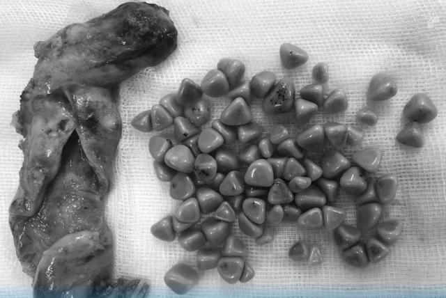 Túi mật hóa đá vì tự ý điều trị đau dạ dày - 3