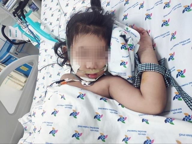 Bé gái sốc sốt xuất huyết suy đa cơ quan may mắn thoát chết - 3