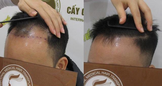 Cơ hội cấy tóc miễn phí tại Hà Nội và TP. HCM - 2