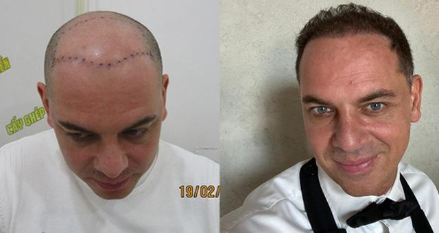 Cơ hội cấy tóc miễn phí tại Hà Nội và TP. HCM - 3