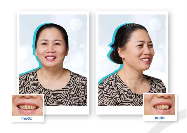 Dùng thưởng Tết đúng cách cho nụ cười với 3 gợi ý sau - 2