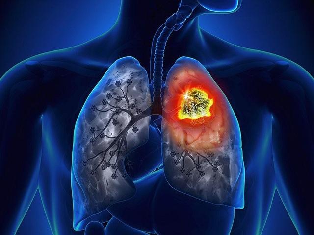 Có những dấu hiệu này, bệnh ung thư phổi đã ở giai đoạn muộn - 1