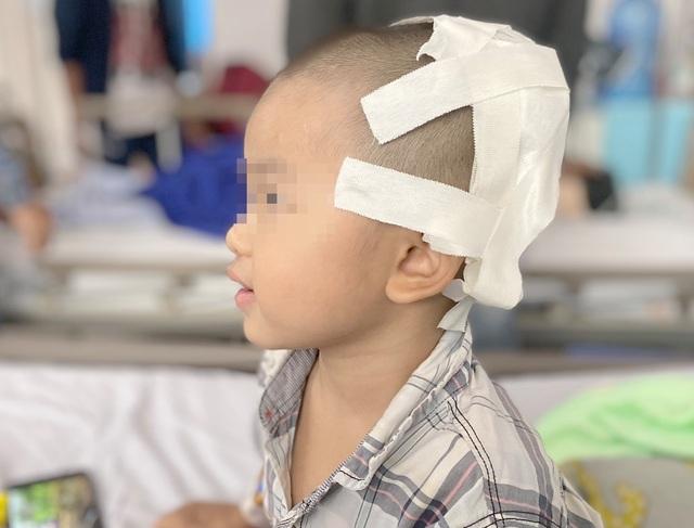 Cậu bé 2 tuổi bị lõm hộp sọ vì tai nạn nguy hiểm thường gặp - 3
