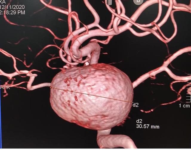 Làm sạch mạch máu: Coi chừng tiền mất tật mang - 1