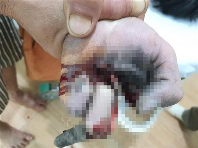 Vừa sạc điện thoại vừa chơi game, một thiếu niên bị nổ nát bàn tay - 1