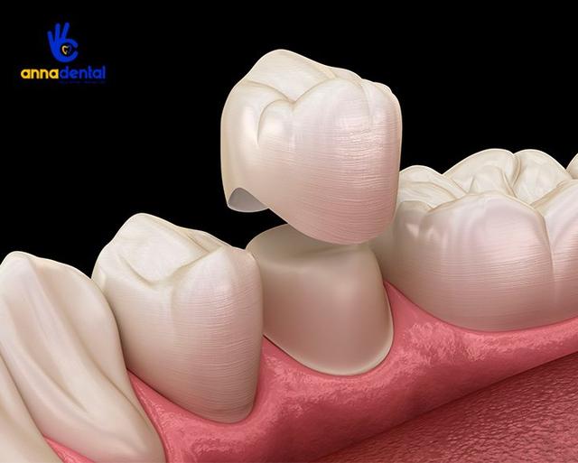 Nha khoa Anna - địa chỉ bọc răng sứ tin cậy của nhiều khách hàng - 1