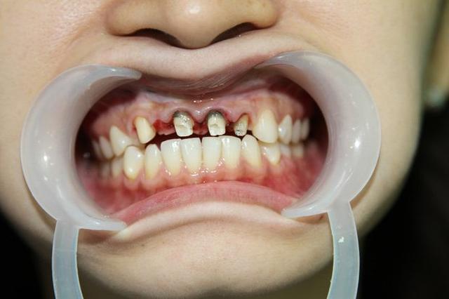 Nha khoa Anna - địa chỉ bọc răng sứ tin cậy của nhiều khách hàng - 2
