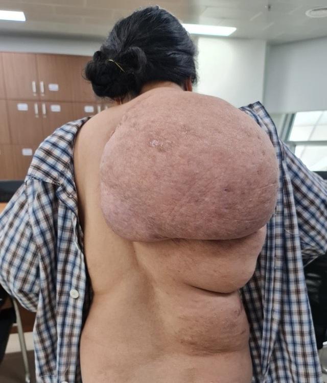 Người phụ nữ mang khối u khổng lồ trên vai như mai rùa - 1