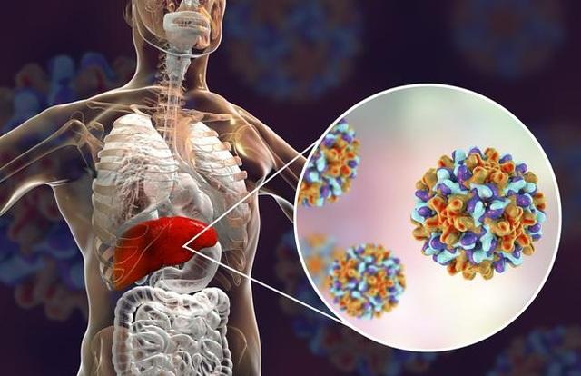 Khi nào bệnh viêm gan B chuyển sang giai đoạn mạn tính - 1