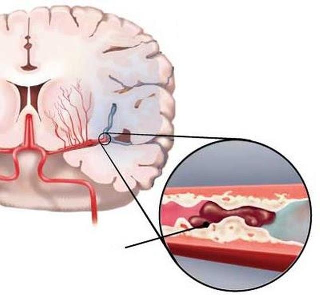Tại sao người bị đột quỵ nhồi máu não nên dùng Nattospes? - 1