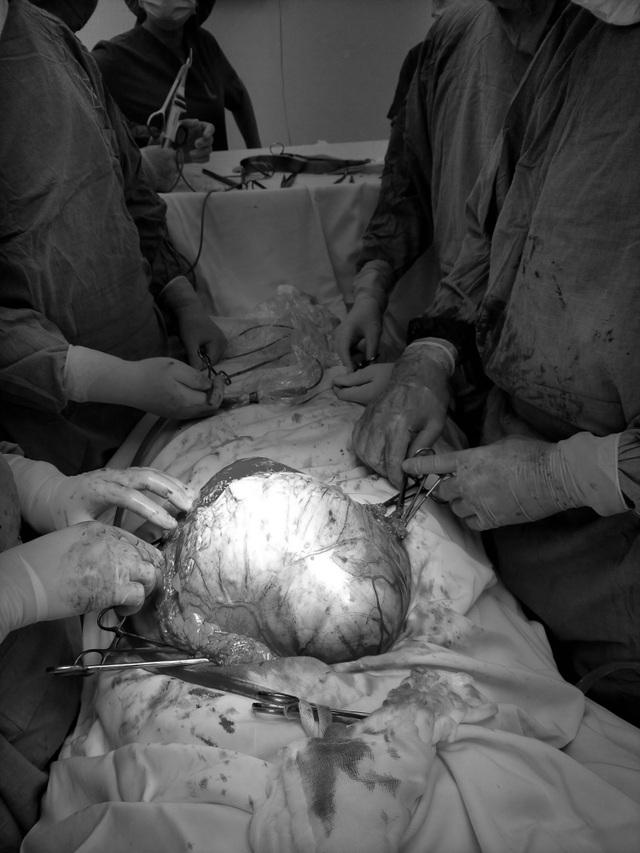 Ung thư buồng trứng giai đoạn muộn vì chủ quan không đi khám - 1