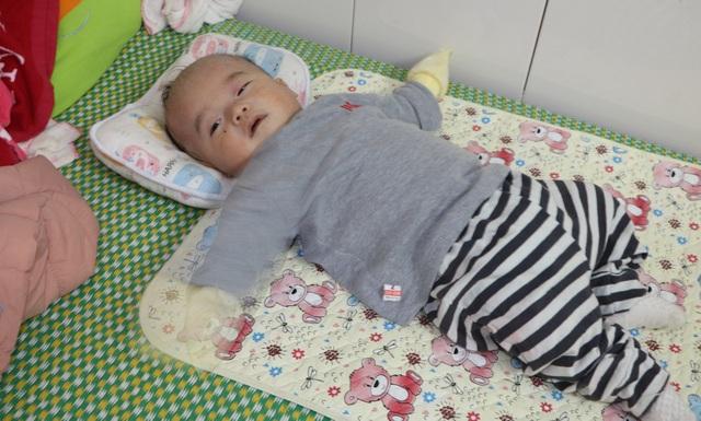 Cháu Nguyễn Đình Khoa bị hẹp van trên động mạch phổi nặng, thông liên nhĩ, phải điều trị, phẫu thuật nhiều lần, chi phí lớn.