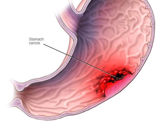 Phát hiện sớm ung thư dạ dày - 1