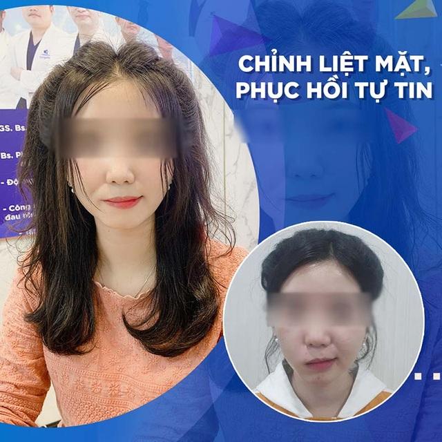 Bệnh viện thẩm mỹ Gangwhoo: Thông điệp xúc động đằng sau câu chuyện giải cứu dây thần kinh số 7 - 1