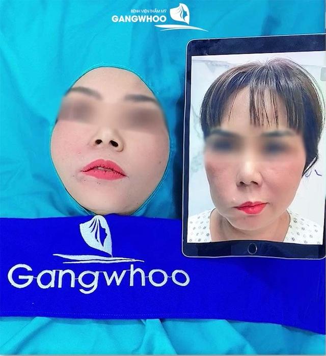 Bệnh viện thẩm mỹ Gangwhoo: Thông điệp xúc động đằng sau câu chuyện giải cứu dây thần kinh số 7 - 3