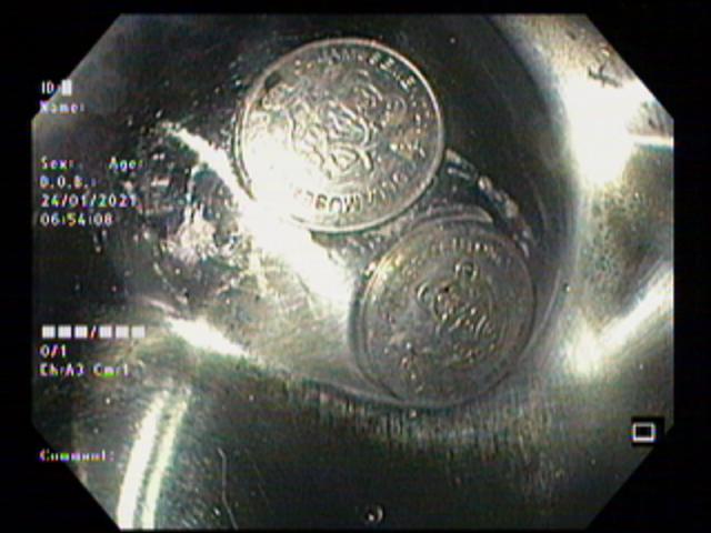 2 đồng xu máy chơi game chui tọt vào đường tiêu hóa bệnh nhi - 3