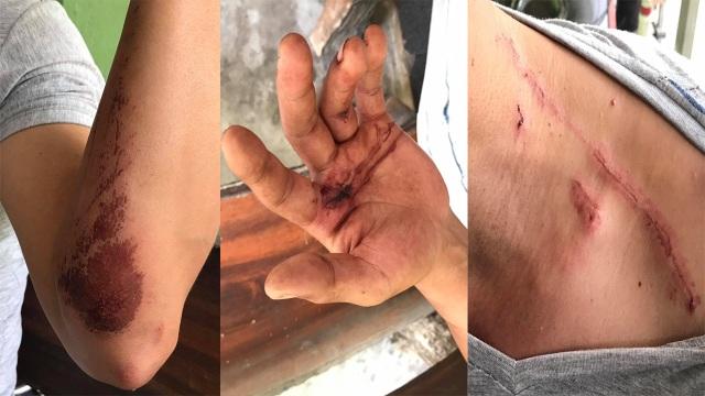Nam thanh niên bị cướp giật dây chuyền, kéo lê trên đường - 2