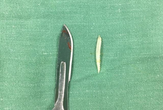 Cứu sống bệnh nhân bị áp xe trung thất nghiêm trọng do mắc xương cá - 1