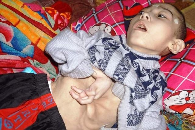 Xúc động tấm lòng bạn đọc giúp đỡ cậu bé nằm liệt 15 năm hơn 130 triệu đồng - 2