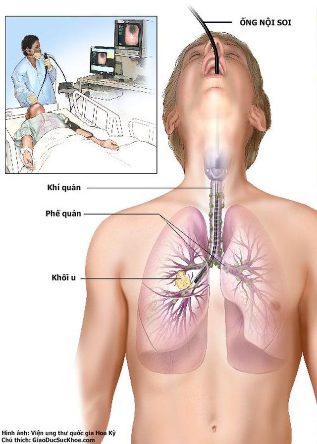 Chẩn đoán và điều trị ung thư thực quản - 2