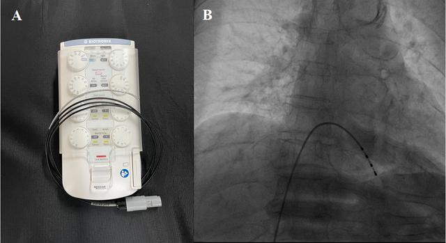 Cấp cứu thành công 2 bệnh nhân bị nhồi máu cơ tim cấp nặng - 2